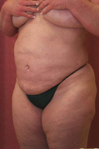 liposuction of abdomen and flanks