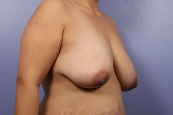 Breast Lift / Breast Implant  before 301656