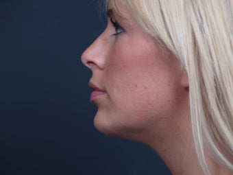 Chin Implant after 462482