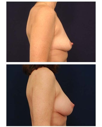 Breast Lift with Implants before 282728