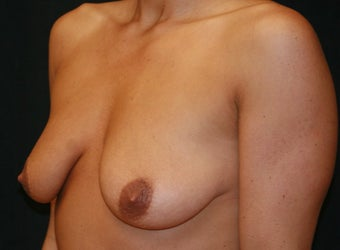 Augmentation - Mastopexy before 132255