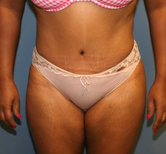tummy tuck after 617922