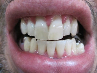 Zoom Teeth Whitening after 554247