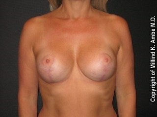 Breast Implant Revision  after 595902