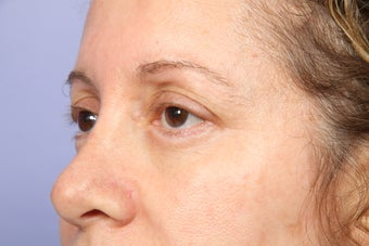 Eyelid Surgery  after 306457