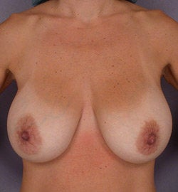 Breast Lift before 285359