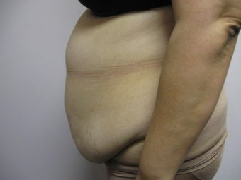Abdominoplasty 339805
