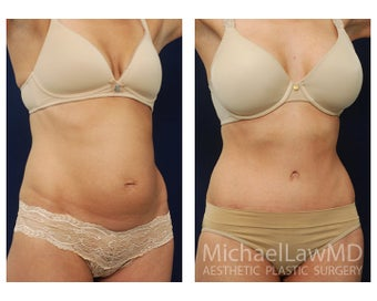 Abdominoplasty - Tummy Tuck after 396000