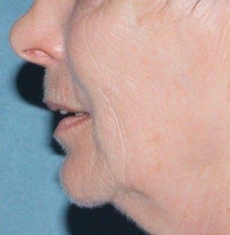 Laser resurfacing for mouth