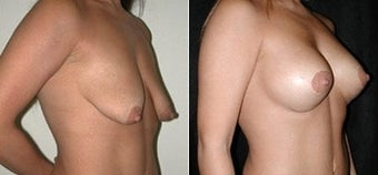 Breast Lift and Augmentation before 110086
