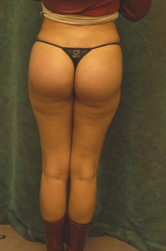 Women's Buttocks Augmentation   518123