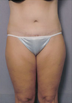 Tummy Tuck after 428193