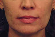 Laser Skin Tightening before 297813