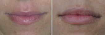 Lip Augmentation before 388079