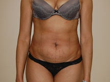 Tummy Tuck before 601352