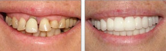 Cosmetic Dentistry before 143018