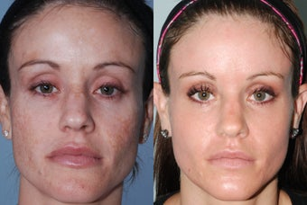 Fraxel Restore Dual Laser Treatments before 369114
