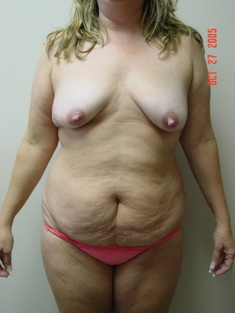 tummy tuck, flank liposuction, breast augmentaion & breast lift before 319724