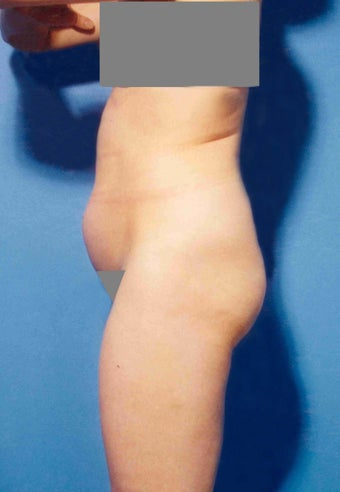 Abdominoplasty before 356387