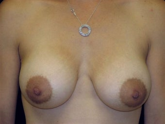 Breast augmentation after 293920