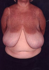 Minimal Scar Breast Reduction before 85815