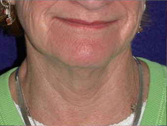 Necklift before 208438