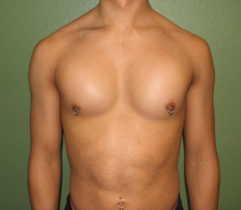 Pectoral Implants after 421489