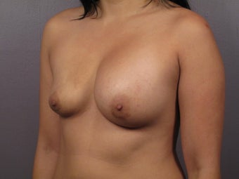 Breast Lift before 311085