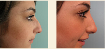 Non-Surgical Nose Job before 627869