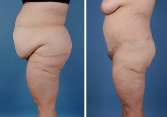 Bilateral Lower Body Lift and Liposuction after 303678