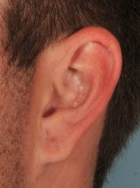 Earlobe Gauge Repair after 589635