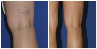 Sclerotherapy before 392706