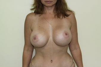 Breast augmentation after 365702