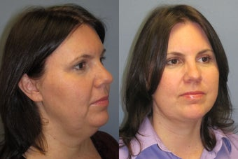 Lite Lift™, liposuction of the neck before 523705