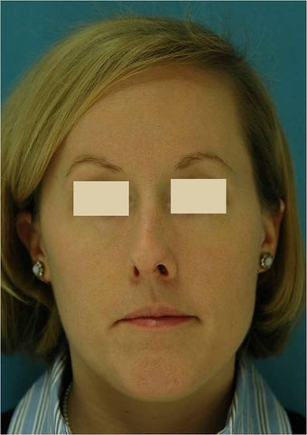 Rhinoplasty, Septoplasty before 124594
