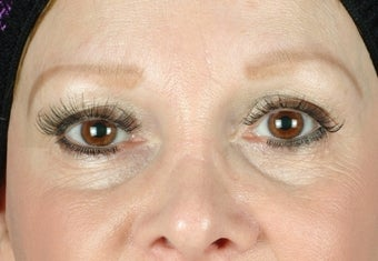 under eye fillers before 502765