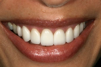 Porcelain veneers after 503132