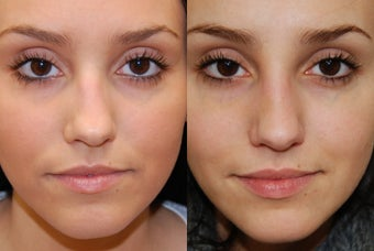 Non-Surgical Rhinoplasty with Silikon-1000 before 257685