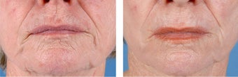 Active FX Fractional Laser Resurfacing after 253993