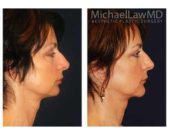 Chin Liposuction 391524