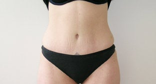 Abdominoplasty after 491396