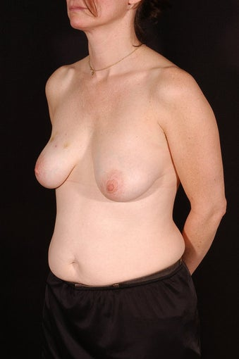 Breast Reconstruction before 164838