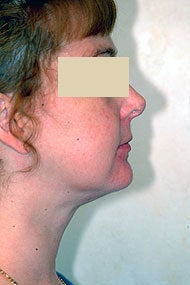 Neck Liposuction after 87336
