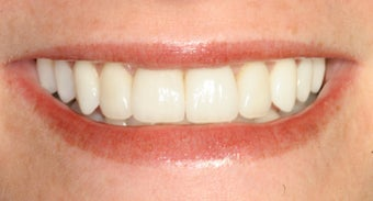 Orthodontics, all porcelain veneers after 503128