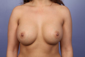 Breast Augmentation  after 338701