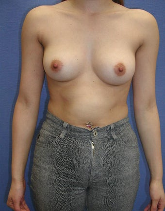 Breast Augmentation Surgery before 102272