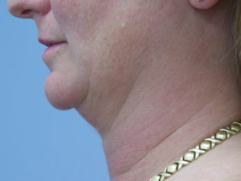 Liposuction of chin/neck area before 590877