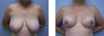 Breast Reduction before 220911