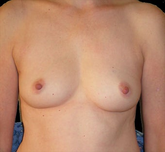 Breast reconstruction with silicone implants before 476705