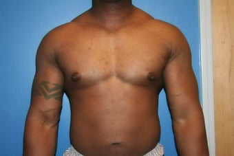 VASER Liposuction for gynecomastia after 507985